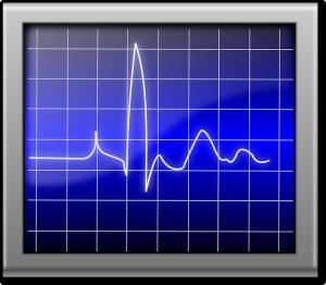 Badania elektrokardiografem (EKG) może pomóc wykryć choroby wieńcowe