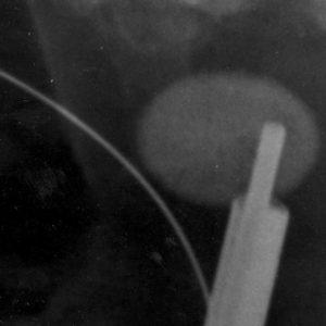 Operacyjne metody usuwania kamieni nerkowych